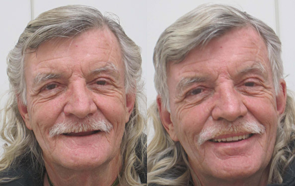 homeless-smile-makeover